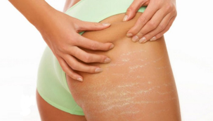 8 Remedies To Get Rid Stretch Marks